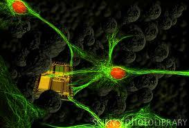 nano brain implant